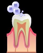 むし歯の危険性