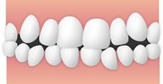 叢生(そうせい、八重歯、凸凹、乱ぐい歯)