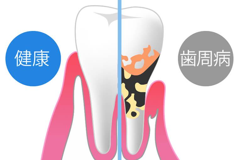 歯周病予防